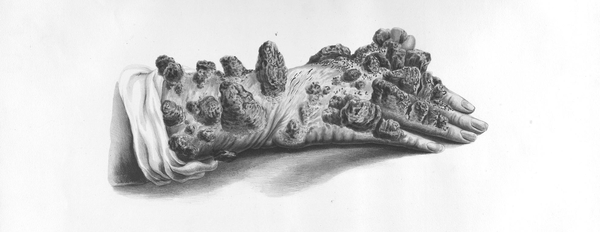 Lepra tubercular mano